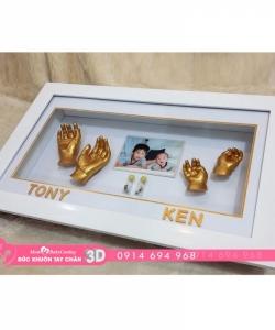 Đúc khuôn tay chân 3D - BS09