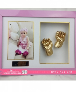 Đúc khuôn tay chân 3D - TC21